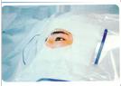 一次性眼科手术包